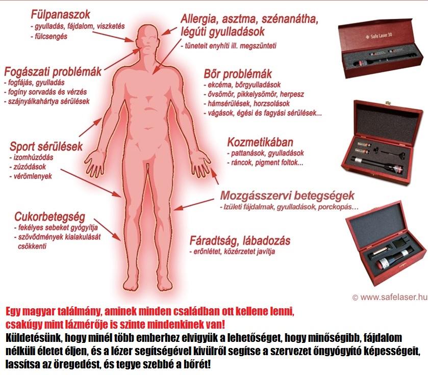 Safe Laser lágylézer kezelés